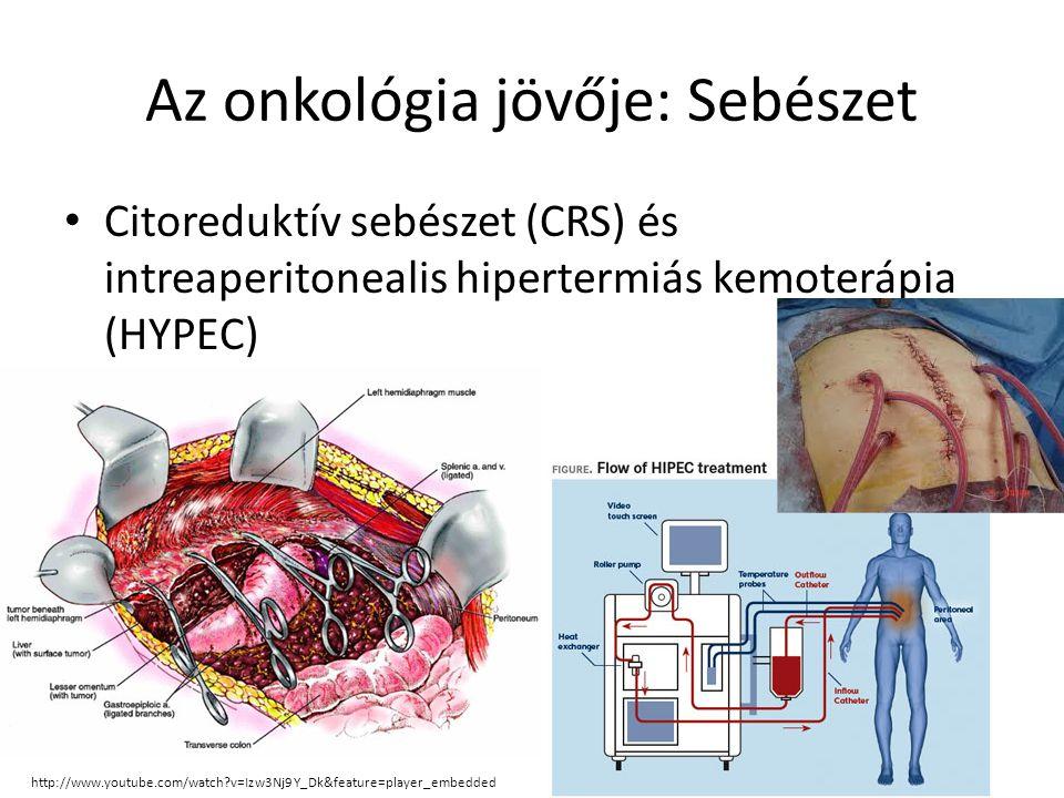 Az onkológia jövője - Sugárterápia IMRT = intenzitás modulált RT IGRT = image-guided RT Cyberknife Hadron terápia