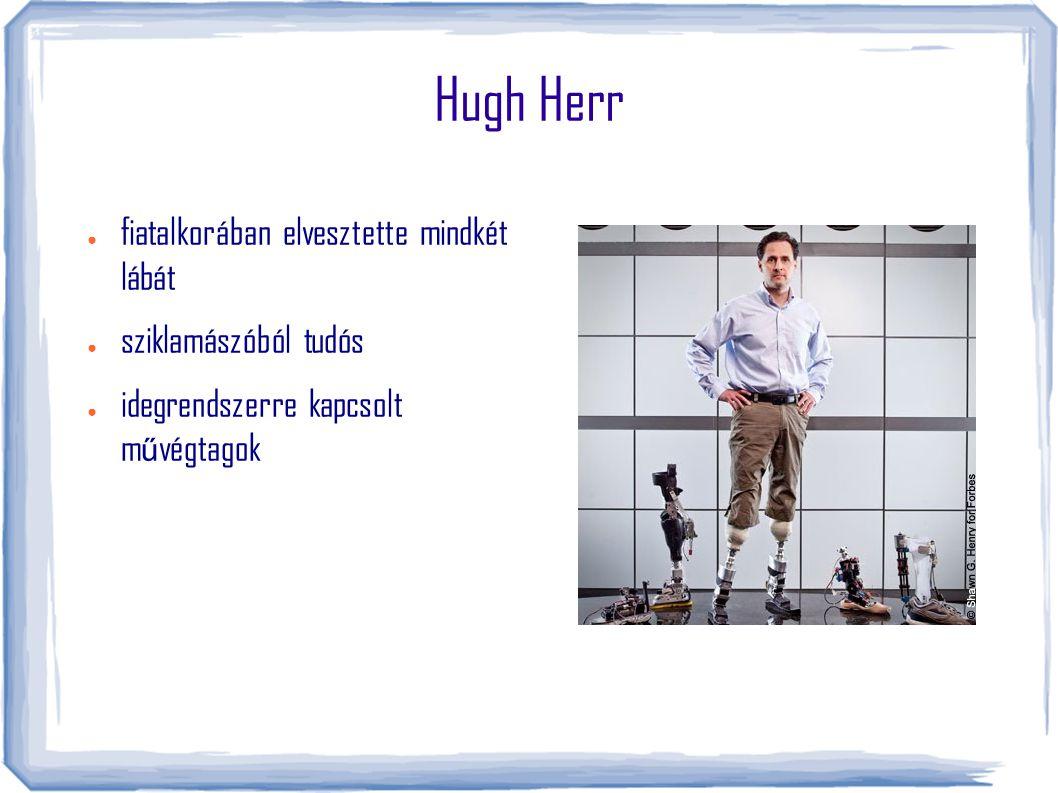 Hugh Herr ● fiatalkorában elvesztette mindkét lábát ● sziklamászóból tudós ● idegrendszerre kapcsolt m ű végtagok