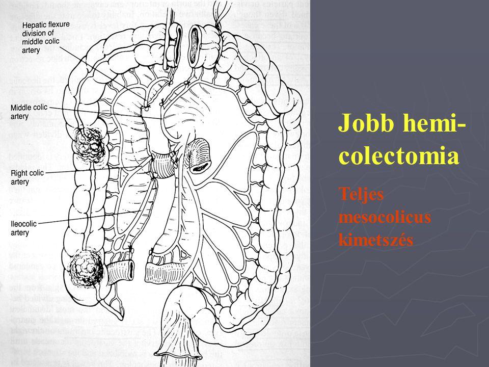 Jobb hemi- colectomia Teljes mesocolicus kimetszés