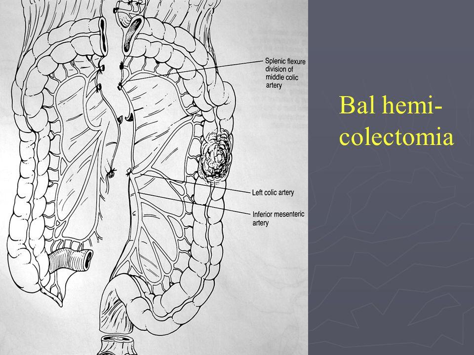 Bal hemi- colectomia
