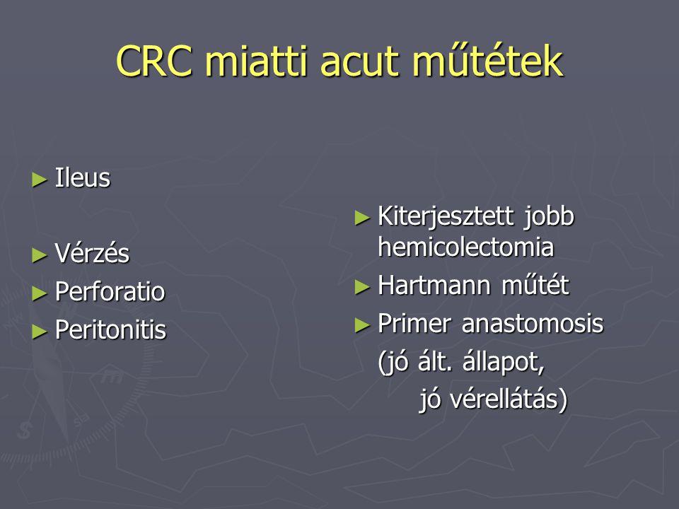 CRC miatti acut műtétek ► Ileus ► Vérzés ► Perforatio ► Peritonitis ► Kiterjesztett jobb hemicolectomia ► Hartmann műtét ► Primer anastomosis (jó ált.