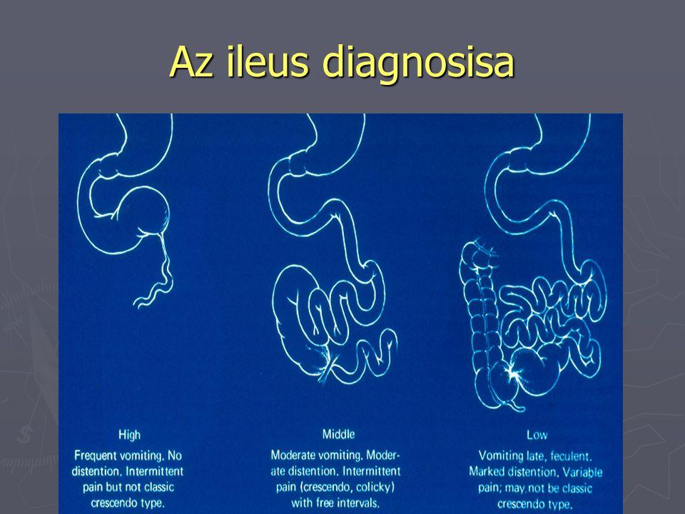 Az ileus diagnosisa