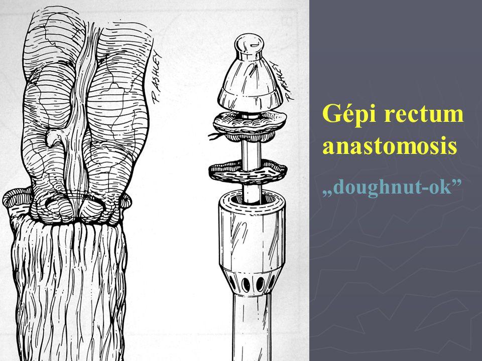 "Gépi rectum anastomosis ""doughnut-ok"