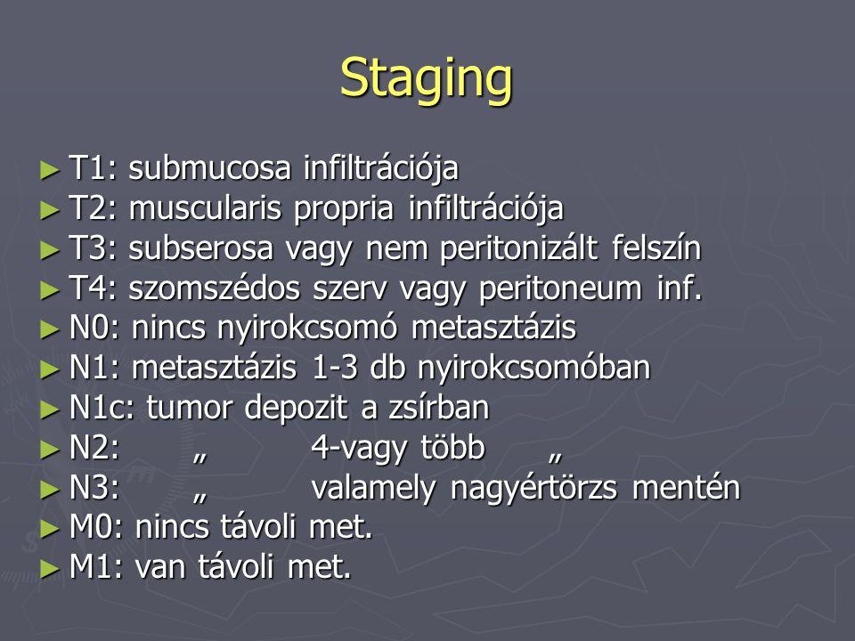 Staging ► T1: submucosa infiltrációja ► T2: muscularis propria infiltrációja ► T3: subserosa vagy nem peritonizált felszín ► T4: szomszédos szerv vagy