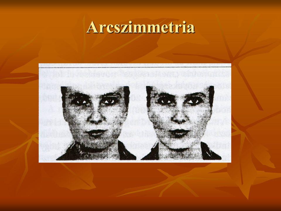 Arcszimmetria