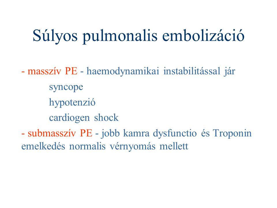 Súlyos pulmonalis embolizáció - masszív PE - haemodynamikai instabilitással jár syncope hypotenzió cardiogen shock - submasszív PE - jobb kamra dysfun