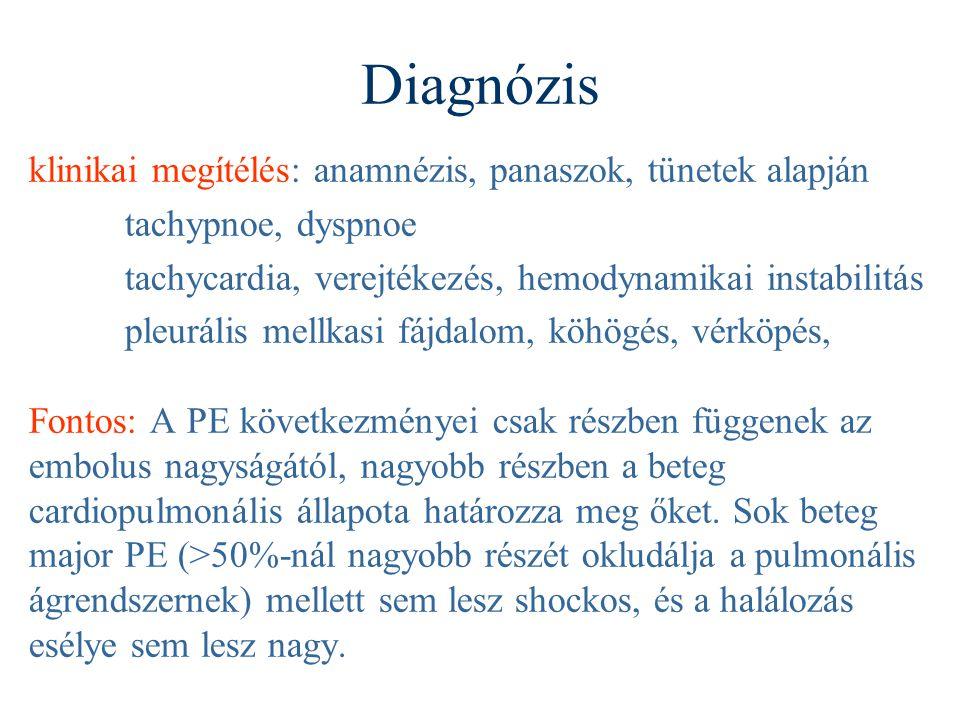 Diagnózis klinikai megítélés: anamnézis, panaszok, tünetek alapján tachypnoe, dyspnoe tachycardia, verejtékezés, hemodynamikai instabilitás pleurális