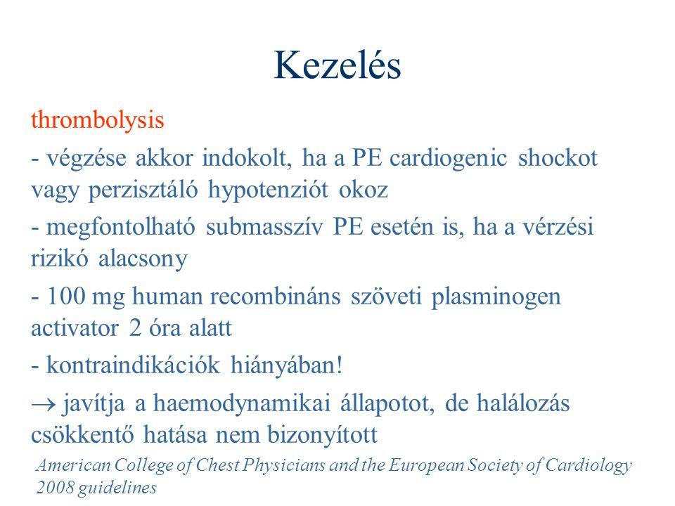 Kezelés thrombolysis - végzése akkor indokolt, ha a PE cardiogenic shockot vagy perzisztáló hypotenziót okoz - megfontolható submasszív PE esetén is,