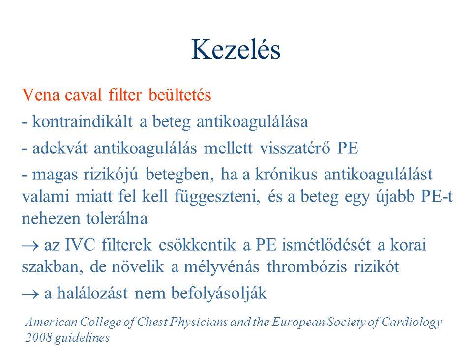 Kezelés Vena caval filter beültetés - kontraindikált a beteg antikoagulálása - adekvát antikoagulálás mellett visszatérő PE - magas rizikójú betegben,