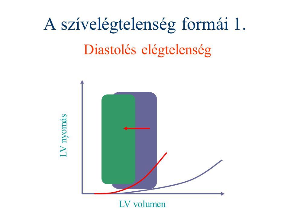 A szívelégtelenség formái 1. Diastolés elégtelenség LV volumen LV nyomás