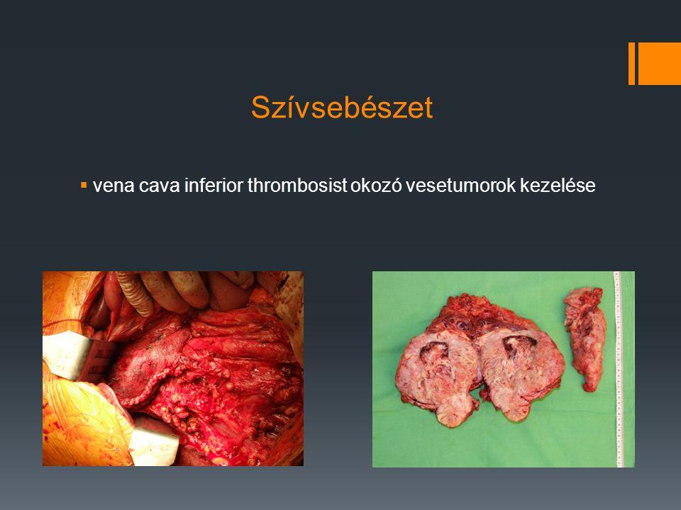 Szívsebészet  vena cava inferior thrombosist okozó vesetumorok kezelése