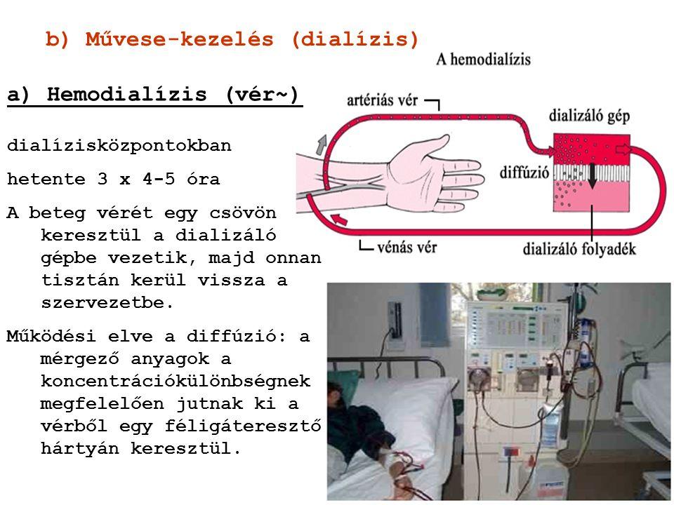 b) Művese-kezelés (dialízis) a) Hemodialízis (vér~) dialízisközpontokban hetente 3 x 4-5 óra A beteg vérét egy csövön keresztül a dializáló gépbe veze
