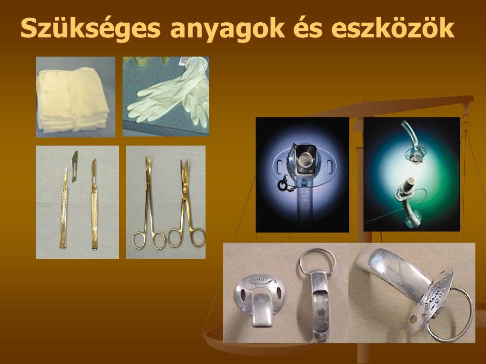 Szükséges anyagok és eszközök