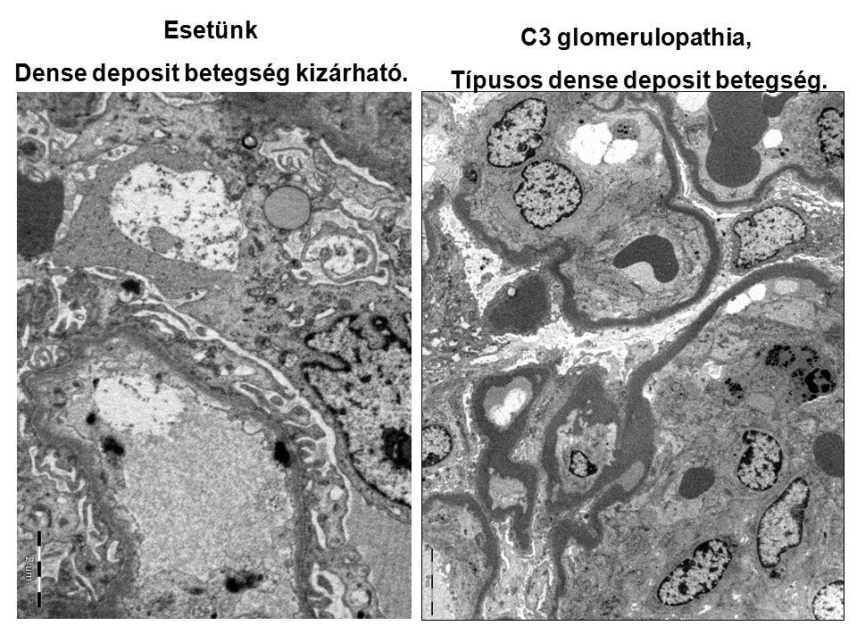 Esetünk Dense deposit betegség kizárható. C3 glomerulopathia, Típusos dense deposit betegség.