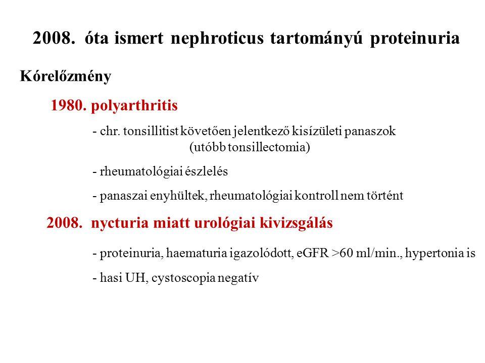 2008. óta ismert nephroticus tartományú proteinuria Kórelőzmény 1980. polyarthritis - chr. tonsillitist követően jelentkező kisízületi panaszok (utóbb