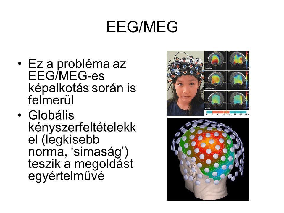 EEG/MEG Ez a probléma az EEG/MEG-es képalkotás során is felmerül Globális kényszerfeltételekk el (legkisebb norma, 'simaság') teszik a megoldást egyértelművé