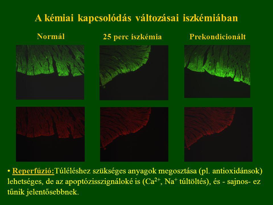 A kémiai kapcsolódás változásai iszkémiában Reperfúzió:Túléléshez szükséges anyagok megosztása (pl.
