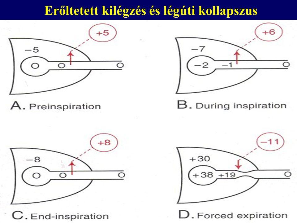 Áramlás-limitáció erőltetett kilégzésnél Equal Pressure Point (EPP)