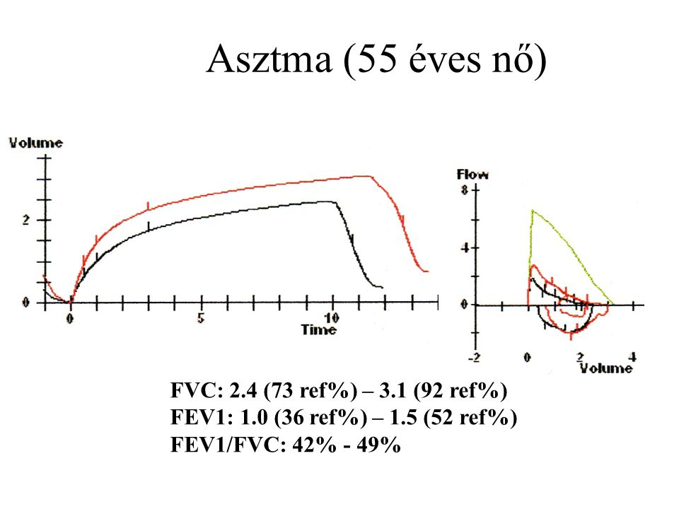 COPD = nem teljesen reverzibilis obstrukció (FEV1/FVC<70%)
