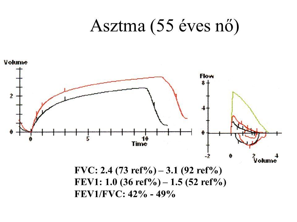 Asztma (55 éves nő) FVC: 2.4 (73 ref%) – 3.1 (92 ref%) FEV1: 1.0 (36 ref%) – 1.5 (52 ref%) FEV1/FVC: 42% - 49%