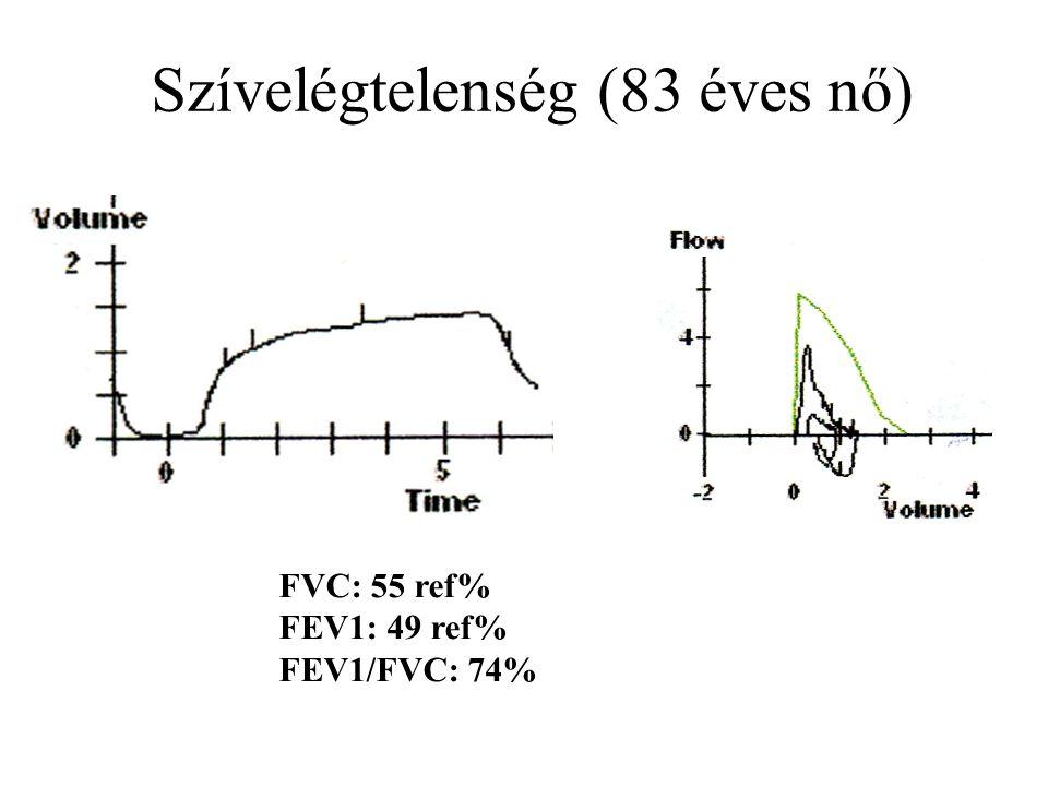 Szívelégtelenség (83 éves nő) FVC: 55 ref% FEV1: 49 ref% FEV1/FVC: 74%