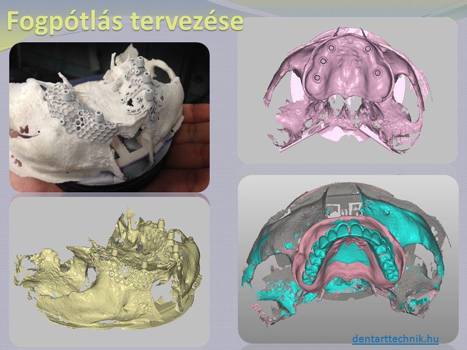 Fogpótlás tervezése dentarttechnik.hu