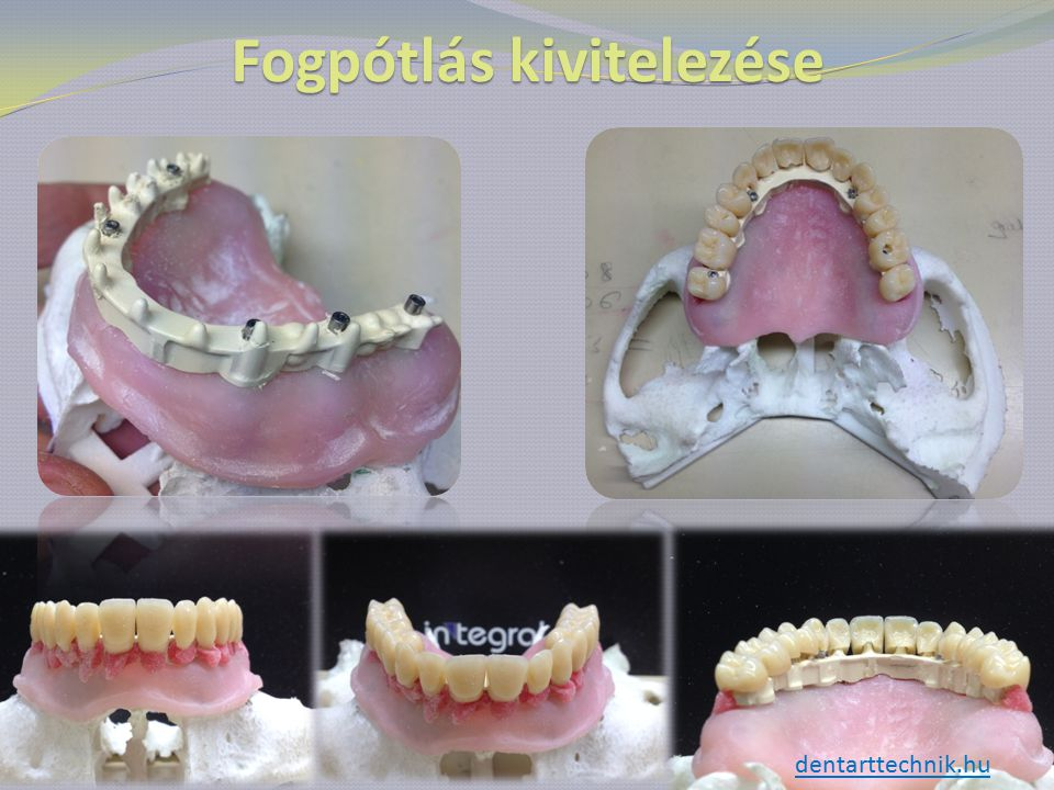Fogpótlás kivitelezése dentarttechnik.hu