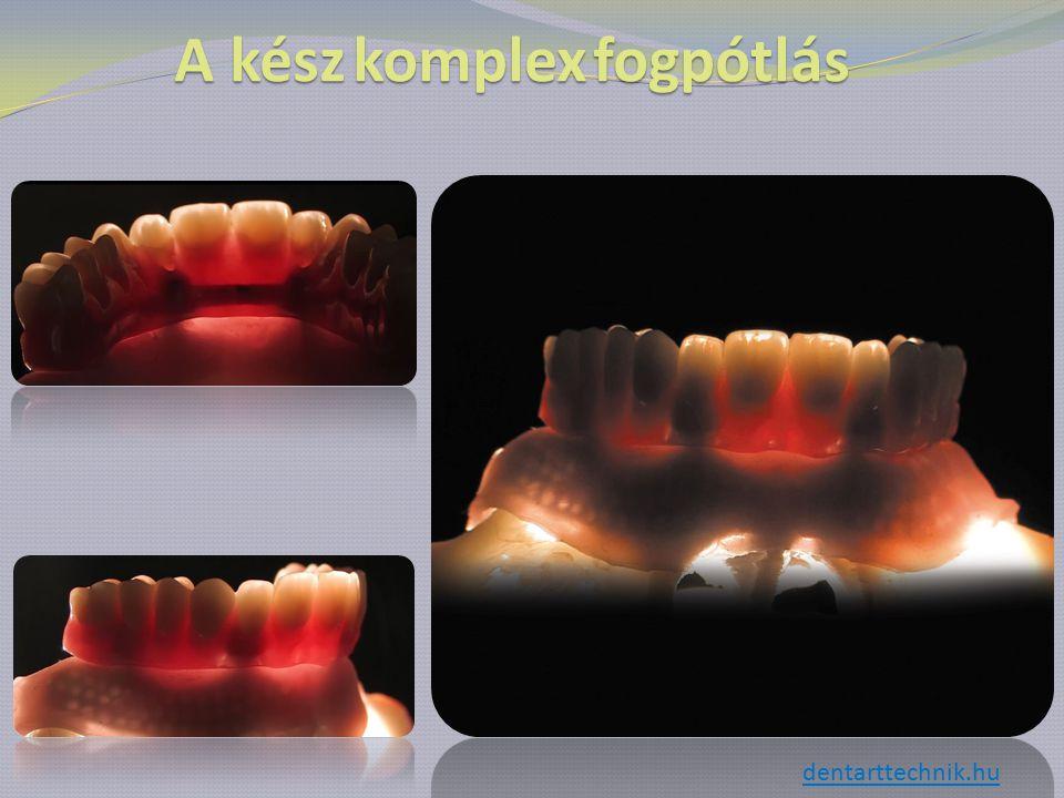 A készkomplexfogpótlás A kész komplex fogpótlás dentarttechnik.hu