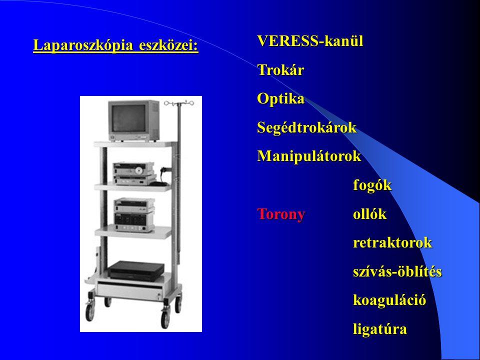 Laparoszkópia eszközei: VERESS-kanülTrokárOptikaSegédtrokárokManipulátorokfogók Toronyollók retraktorokszívás-öblítéskoagulációligatúra