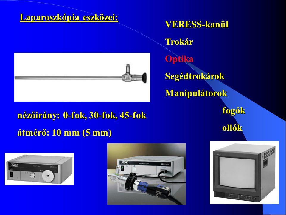 Laparoszkópia eszközei: VERESS-kanülTrokárOptikaSegédtrokárokManipulátorokfogókollókretraktorokszívás-öblítéskoagulációligatúra nézőirány: 0-fok, 30-f