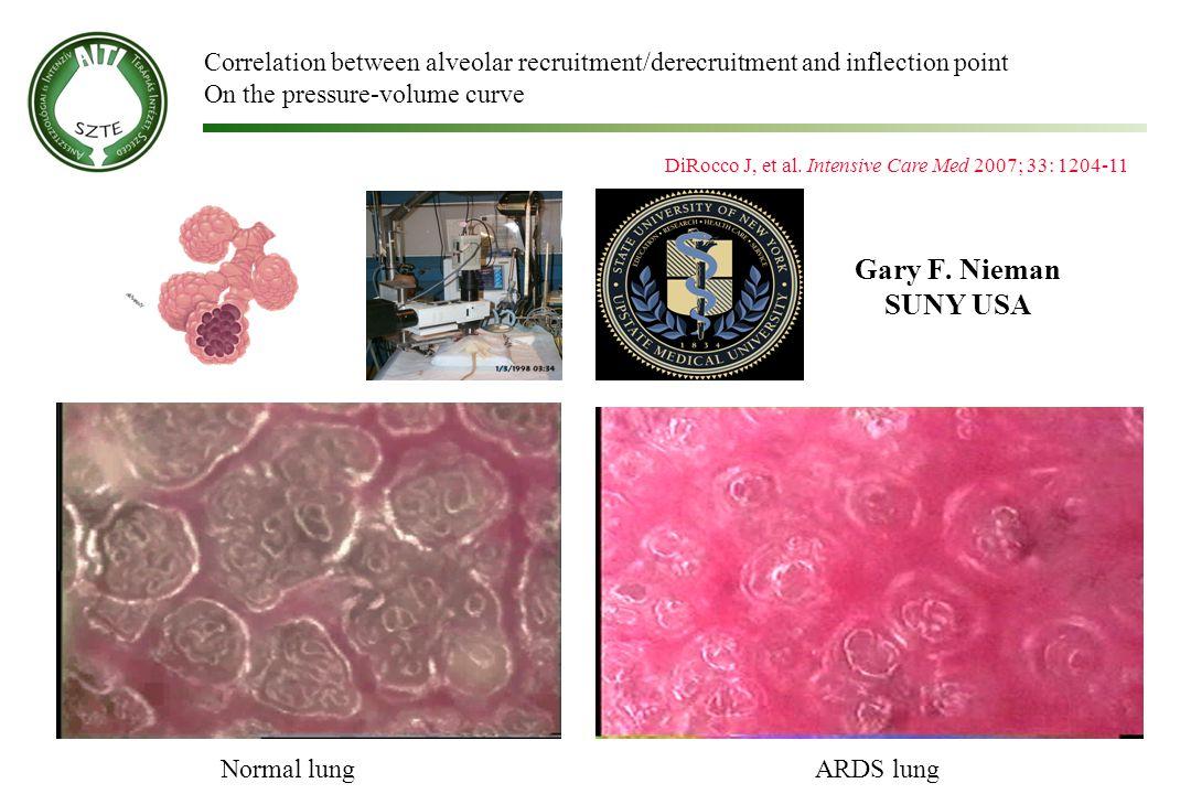 Gary F. Nieman SUNY USA Normal lungARDS lung DiRocco J, et al. Intensive Care Med 2007; 33: 1204-11 Correlation between alveolar recruitment/derecruit