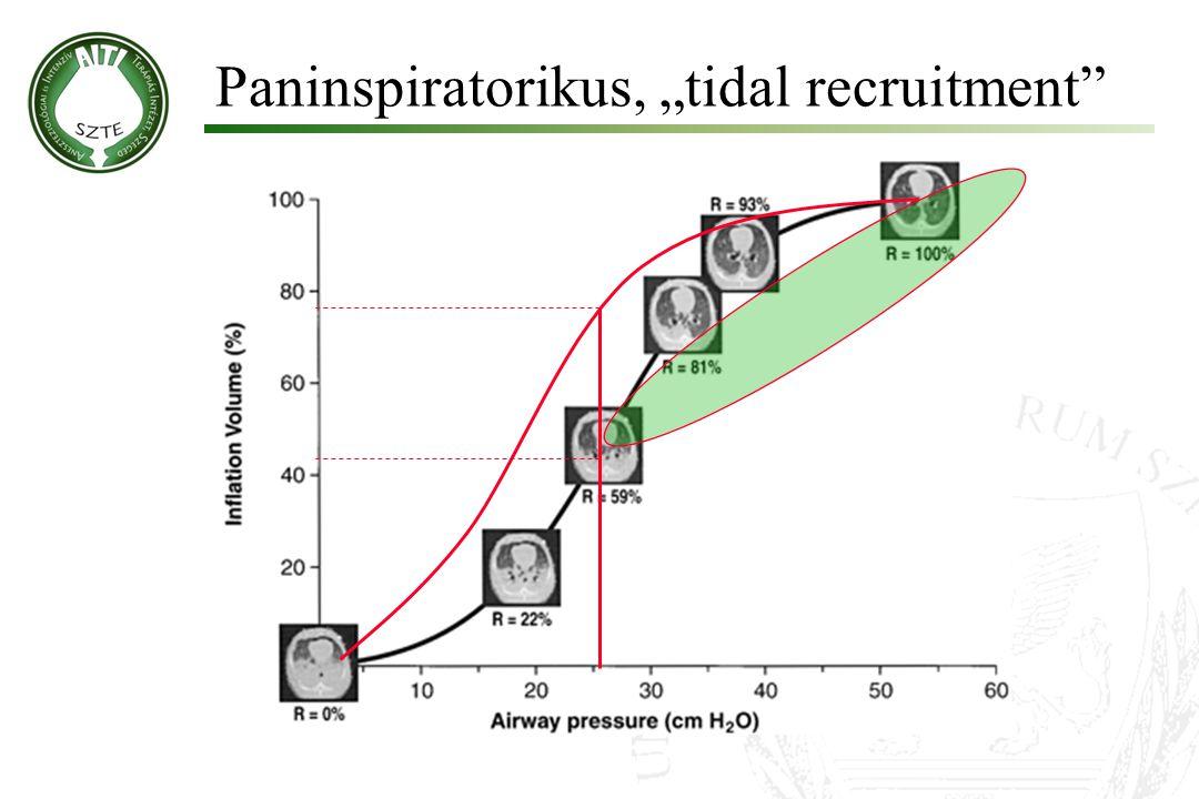 "Paninspiratorikus, ""tidal recruitment"""