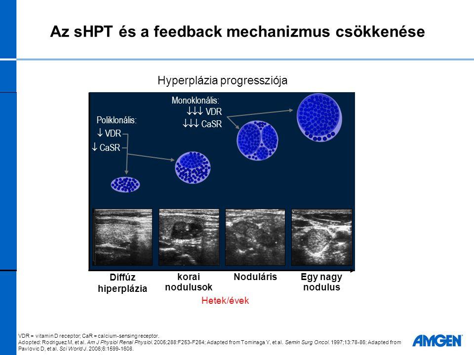 CKD-MBD: multifaktoriális, progresszív megbetegedés klinikai következményekkel Kalcifikáció Klinikai események Csont- anyagcsere Laboratóriumi eltérések