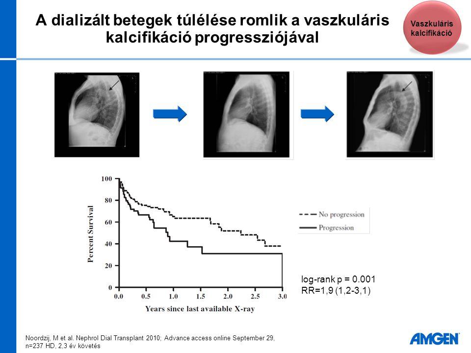 A dializált betegek túlélése romlik a vaszkuláris kalcifikáció progressziójával Noordzij, M et al. Nephrol Dial Transplant 2010; Advance access online