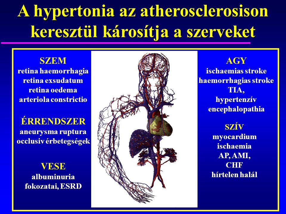 AGY ischaemias stroke haemorrhagias stroke TIA, hypertenzív encephalopathia SZEM retina haemorrhagia retina exsudatum retina oedema arteriola constric