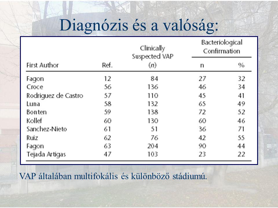 Diagnózis és a valóság: VAP általában multifokális és különböző stádiumú.