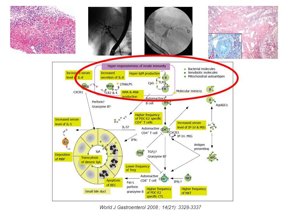 PSC + Colitis ulcerosa + multiplex májtályogok 4 hónapig epeúti szepszis; multiplex májtályogok PMS, szeptikusan cachexiás, járásképtelen, szondatáplálás; állandó kórházi kezelés Klinikai diagnózis: PSC, Colitis ulcerosa, Abscesus hep.