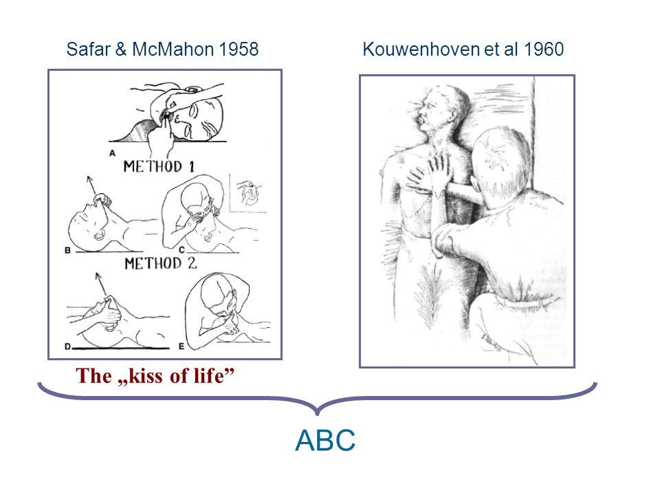 "Safar & McMahon 1958Kouwenhoven et al 1960 ABC The ""kiss of life"