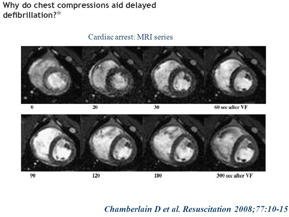 Chamberlain D et al. Resuscitation 2008;77:10-15 Cardiac arrest: MRI series