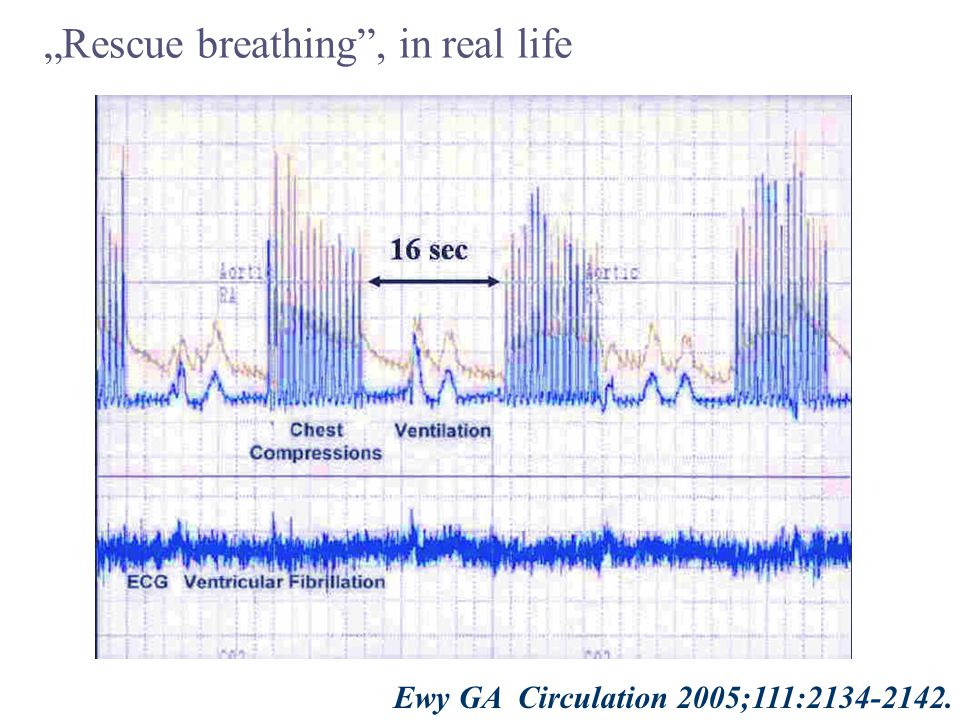 "Ewy GA Circulation 2005;111:2134-2142. ""Rescue breathing , in real life 16 sec"