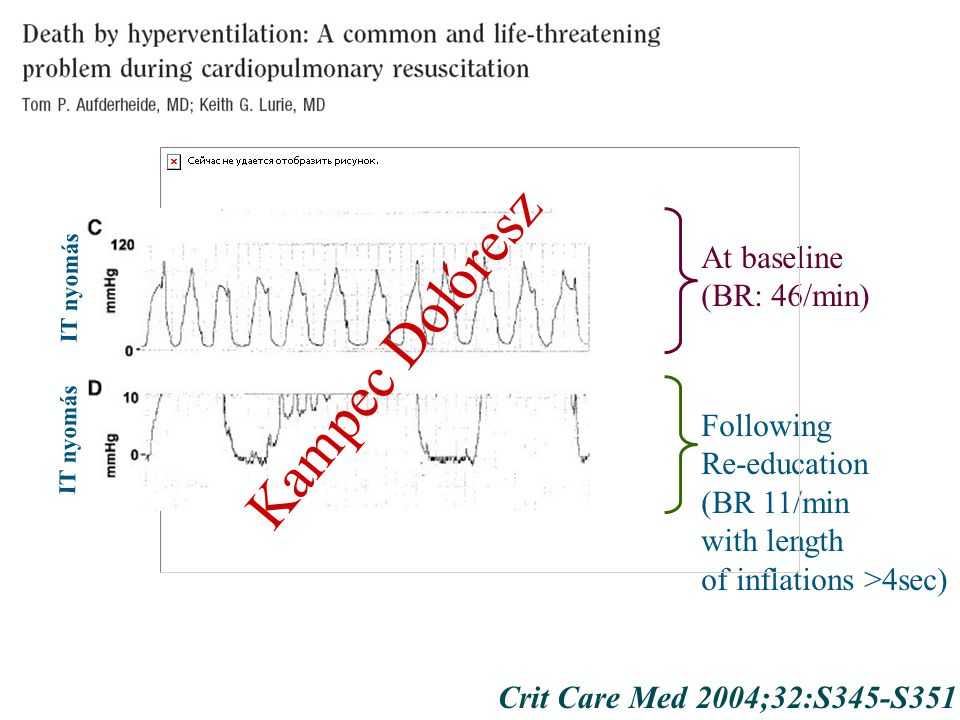 Crit Care Med 2004;32:S345-S351 At baseline (BR: 46/min) Following Re-education (BR 11/min with length of inflations >4sec) IT nyomás Kampec Dolóresz