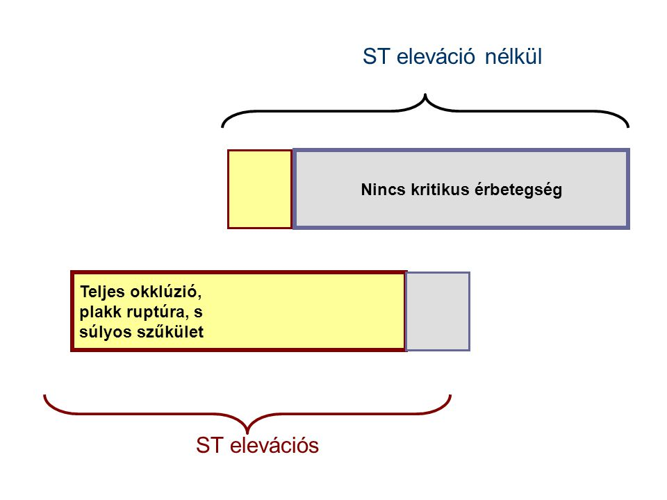Teljes okklúzió, plakk ruptúra, s súlyos szűkület Nincs kritikus érbetegség ST eleváció nélkül ST elevációs