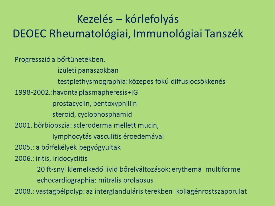 Kezelés – kórlefolyás DEOEC Rheumatológiai, Immunológiai Tanszék Progresszió a bőrtünetekben, izületi panaszokban testplethysmographia: közepes fokú d