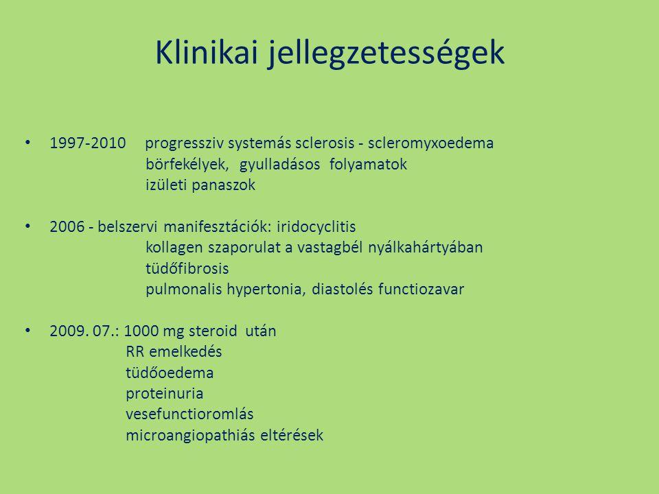 Klinikai jellegzetességek 1997-2010 progressziv systemás sclerosis - scleromyxoedema börfekélyek, gyulladásos folyamatok izületi panaszok 2006 - belsz