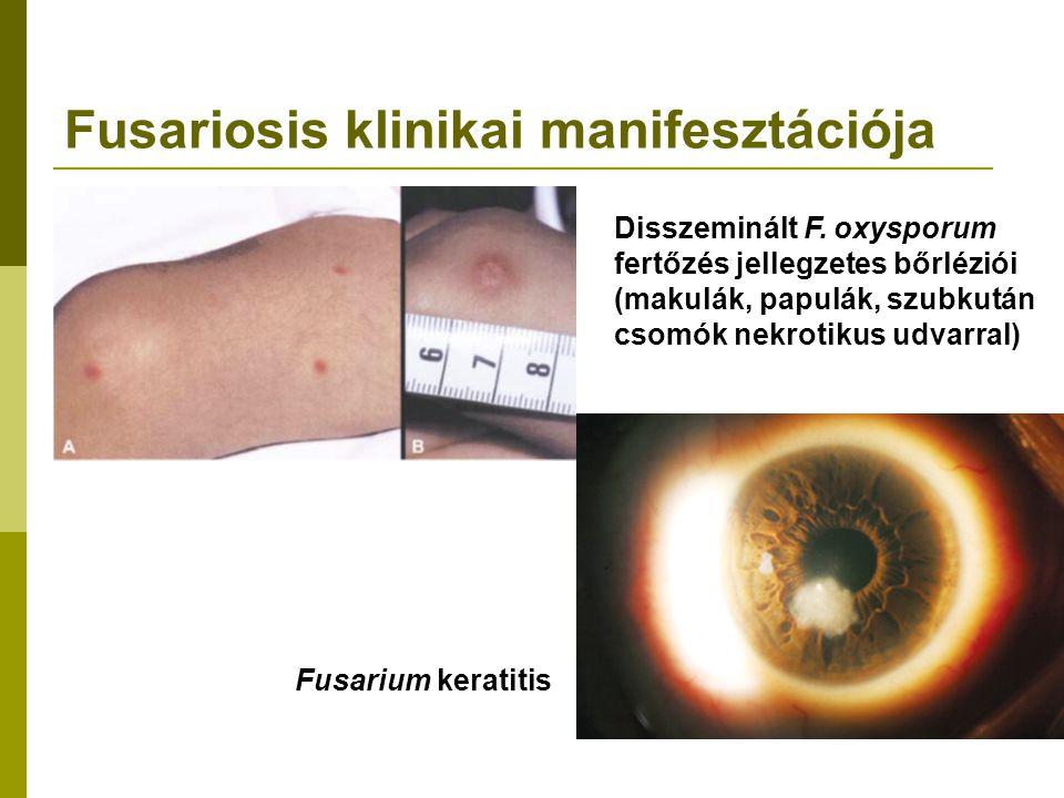 Fusariosis klinikai manifesztációja Disszeminált F.
