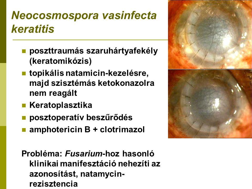 Neocosmospora vasinfecta keratitis poszttraumás szaruhártyafekély (keratomikózis) topikális natamicin-kezelésre, majd szisztémás ketokonazolra nem reagált Keratoplasztika posztoperatív beszűrődés amphotericin B + clotrimazol Probléma: Fusarium-hoz hasonló klinikai manifesztáció nehezíti az azonosítást, natamycin- rezisztencia