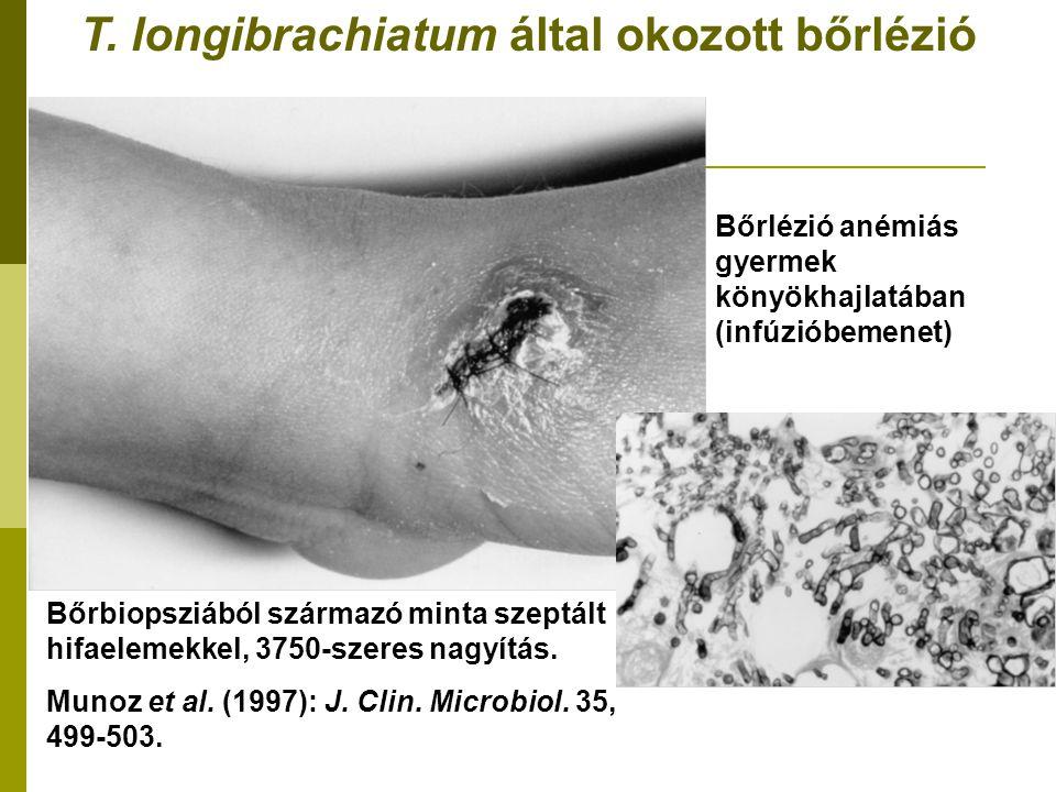 T. longibrachiatum által okozott bőrlézió Bőrbiopsziából származó minta szeptált hifaelemekkel, 3750-szeres nagyítás. Munoz et al. (1997): J. Clin. Mi