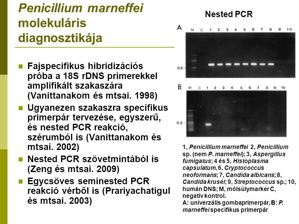 Penicillium marneffei molekuláris diagnosztikája Fajspecifikus hibridizációs próba a 18S rDNS primerekkel amplifikált szakaszára (Vanittanakom és mtsai.