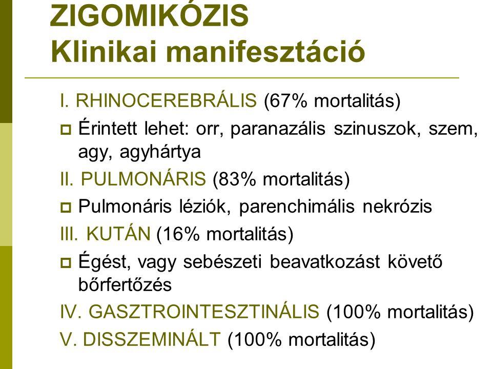 ZIGOMIKÓZIS Klinikai manifesztáció I.