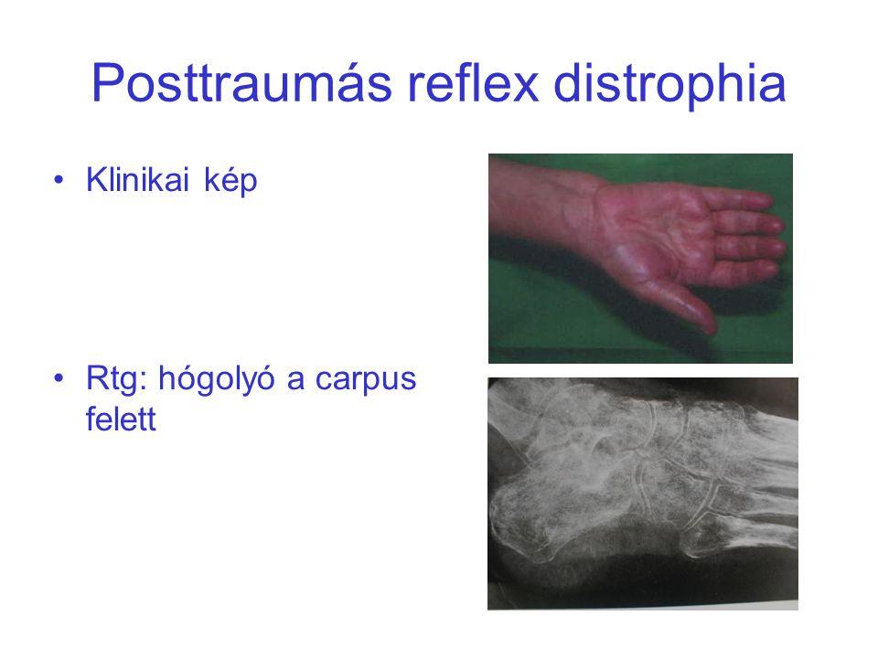 Posttraumás reflex distrophia Klinikai kép Rtg: hógolyó a carpus felett